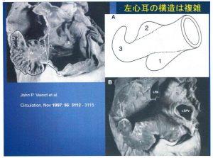 図3 左心耳の構造