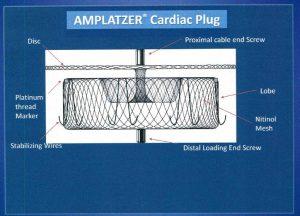図8B Amplatzer Cardiac Plug